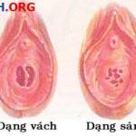 Hình ảnh màng trinh phụ nữ, cấu tạo vị trí của màng trinh