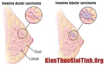 Ung thư biểu mô tuyến vú xâm lấn: Loại ung thư vú phổ biến nguy hiểm nhất