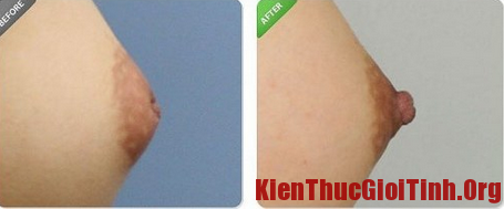 Nguyên nhân và cách khắc phục tình trạng núm vú bị tụt vào trong