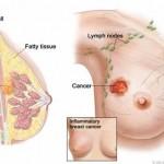 Nguyên nhân gây bệnh ung thư vú